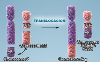 Cromosmas leucemia